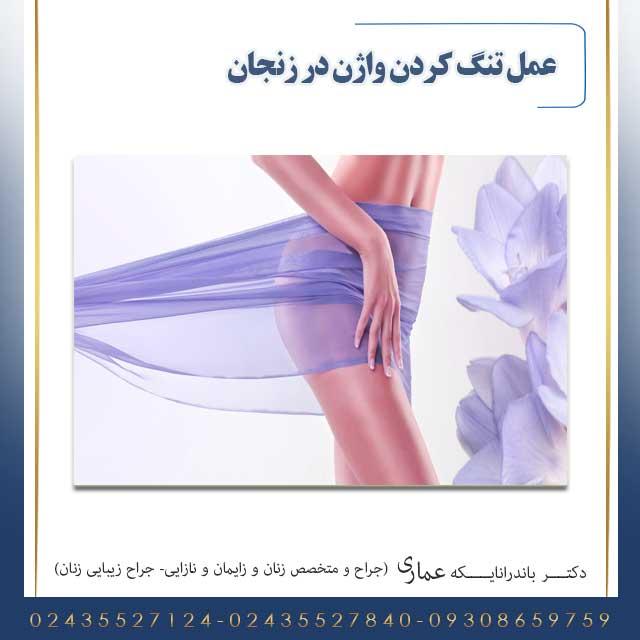 عمل تنگ کردن واژن در زنجان