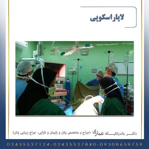 لاپاراسکوپی در زنجان