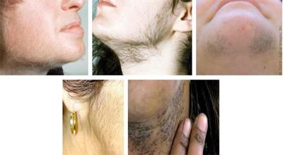 درمان موهای ضخیم