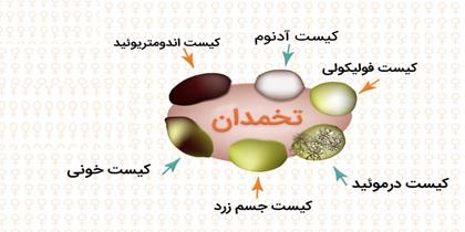 انواع کیست تخمدان